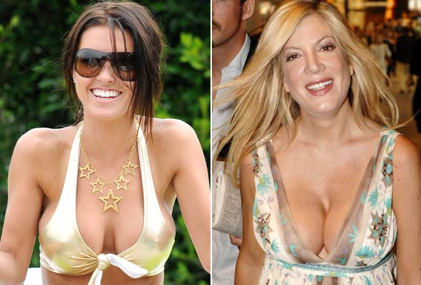 Well tori spelling breast pictures
