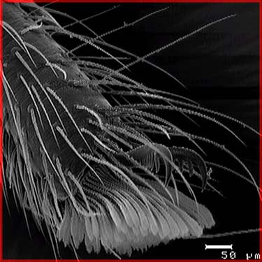 Spiders feet magnified 3000 times. (getting a bit queasy are ya)